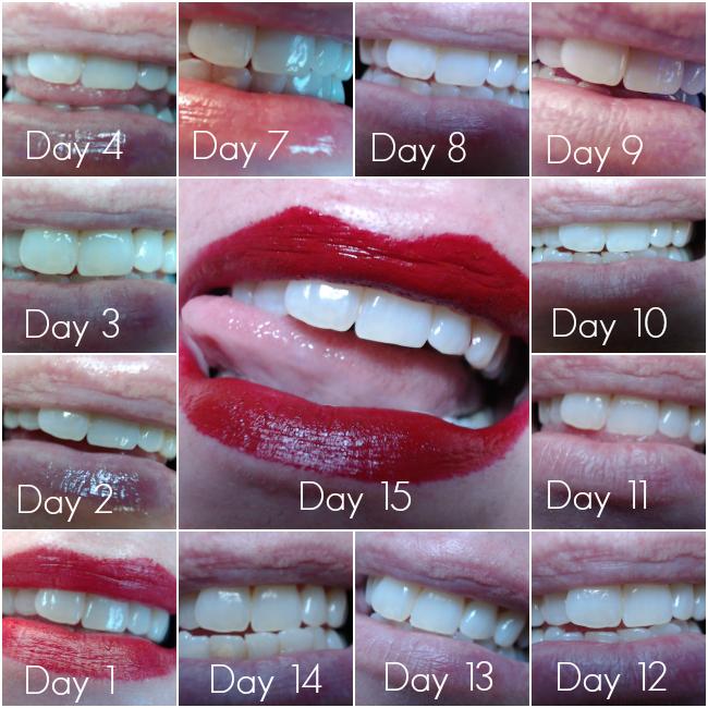 teeth1-15